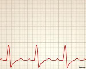 Plantilla PPT de Ritmo Cardiaco
